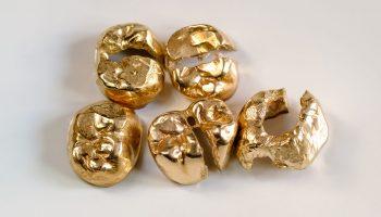 Goldzähne verkaufen